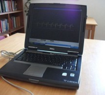 ECG on your laptop using PIC16F876 microcontroller